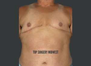 Double Incision FTM Top Surgery