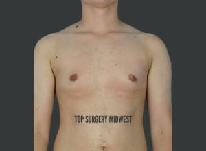 Peri-Areolar FTM Top Surgery