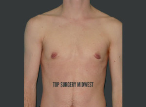 Keyhole FTM Top Surgery